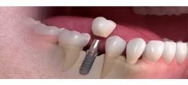 زرع الأسنان