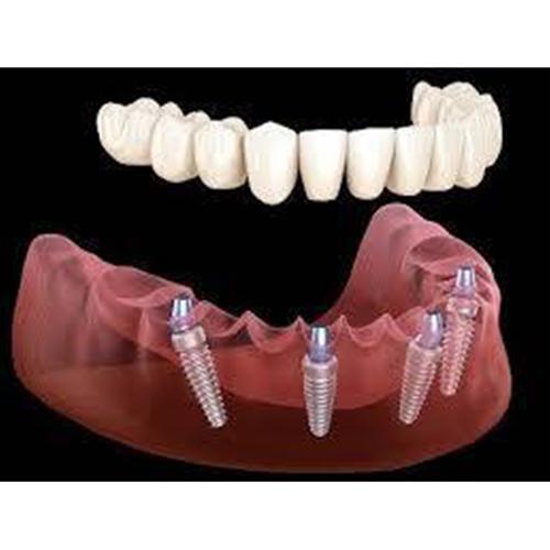 رعایه بعد زرع الأسنان